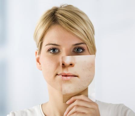 Woman Rash Heals After Aeroseal